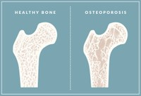 May is Osteoporosis Awareness Month