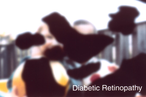 Diabetic Retinopahy